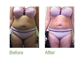 before and after Body Wraps | The Face and BOdy Workshop Camberley