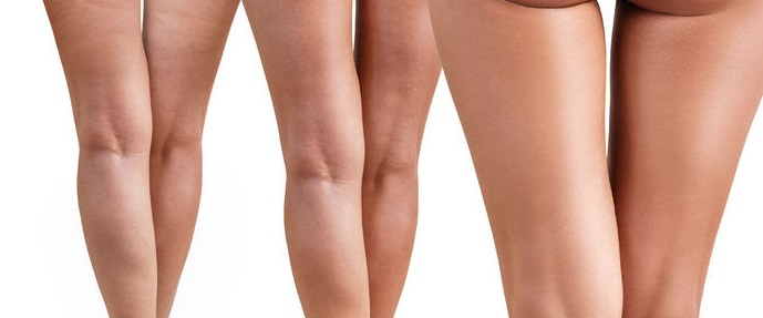 cellulite treatments, camberley beauty salon
