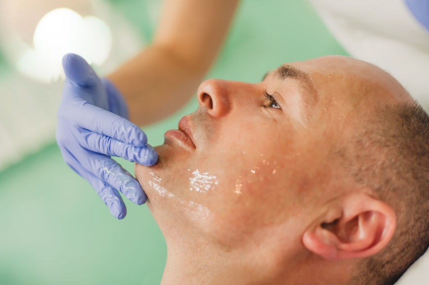 facial treatments for men, Camberley aesthetics clinic