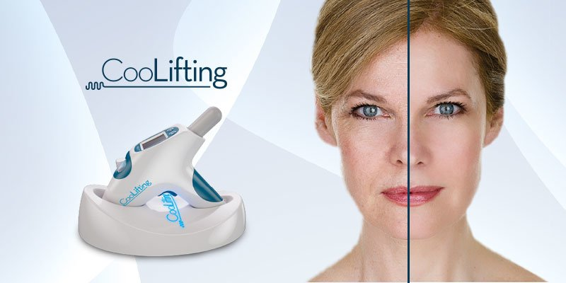 coollifting cyrogenic treatment camberely
