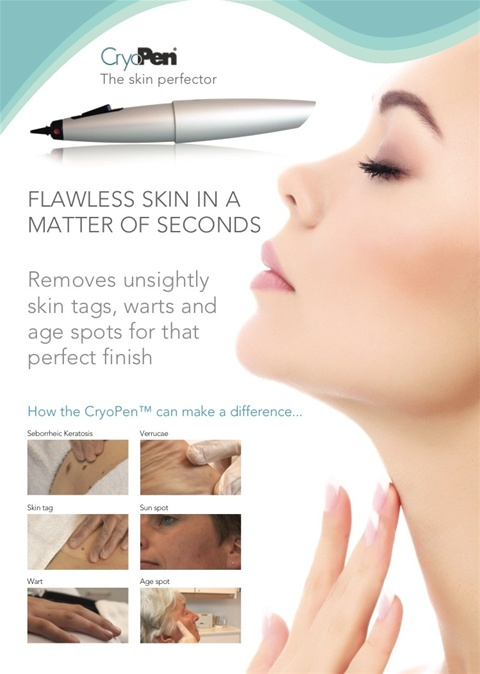 CryoPen Treatment Camberely