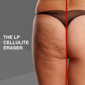 Cellulite Treatments Camberley Surrey